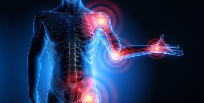 acupunctureandosteoarthritisblog-672x340